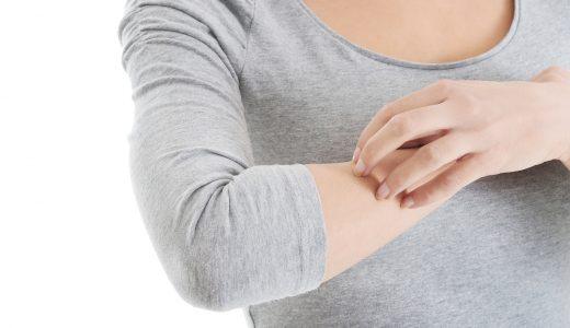 妊娠性痒疹(PUPPP)の対策はよもぎローションと下着!?2人目も痒い!体験談